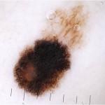litet melanom dermatoskopi